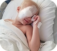 Kinsley with an eye patch on bed